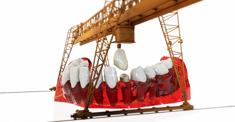 implant-dentar-dr-vodita